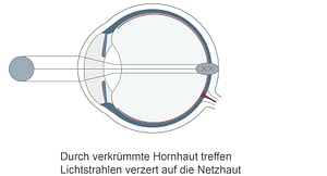HORNHAUTVERKruemmung_02