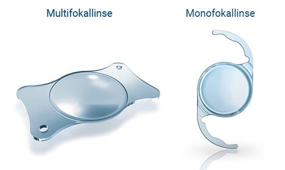 Multifokallinse Monofokallinse